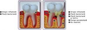 parodontoza-cotroceni-dental